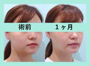 『めっちゃ小顔に!「小顔組み合わせ治療」』の画像
