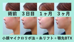 『効果バッチリ「小顔組み合わせ治療」』の画像