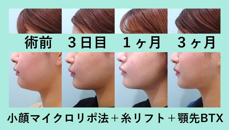 小顔 脂肪吸引 顎先ボトックス 糸リフト ダウンタイム