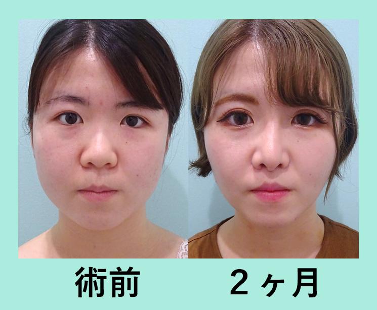 鼻尖形成 鼻プロテーゼ 小鼻縮小