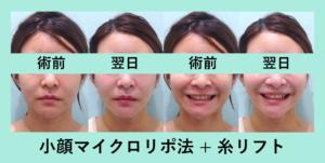 『5歳若返る?「小顔組み合わせ治療」』の画像