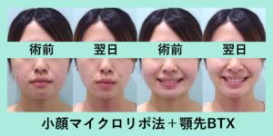 『顔のバランスを整える「小顔マイクロリポ法」』の画像