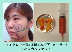 『翌日から小顔に!「小顔組み合わせ治療」』の画像