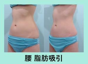 『超美しいくびれを作る「腰の脂肪吸引」』の画像