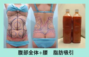 『お腹ぺったんこに!!「お腹と腰の脂肪吸引」』の画像