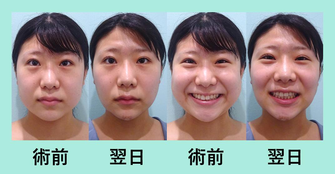 小顔 脂肪吸引 バッカルファット エラボトックス ダウンタイム