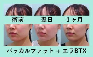 『丸顔からスッキリ顔に「バッカルファット術」』の画像