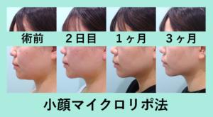 『顎下スッキリ!「小顔マイクロリポ法」』の画像