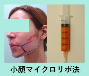 『超カリカリに!「小顔マイクロリポ法」』の画像