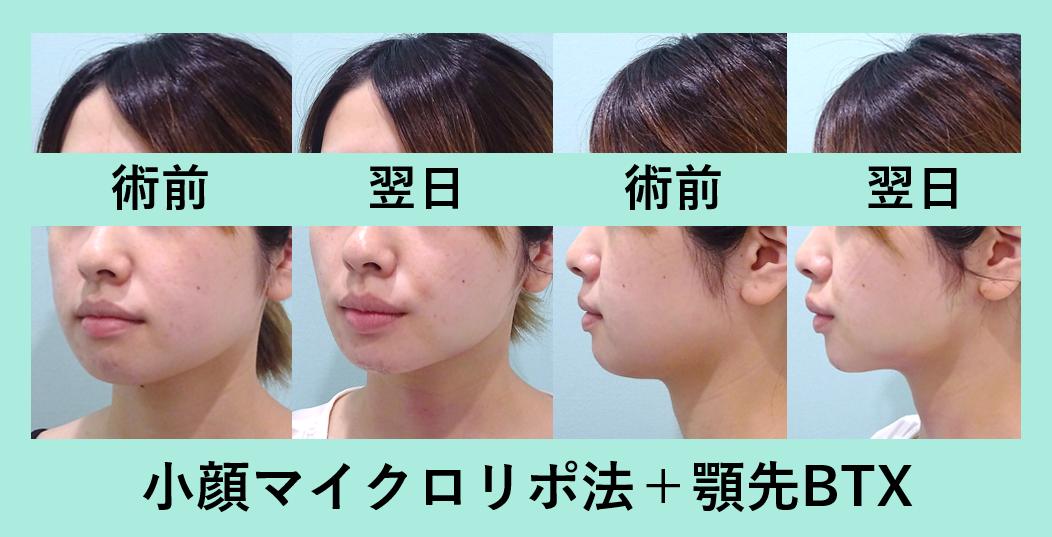 小顔 脂肪吸引 顎ボトックス ダウンタイム