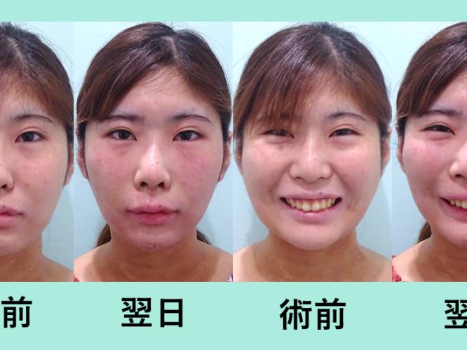 小顔 脂肪吸引 メーラーファット バッカルファット ダウンタイム