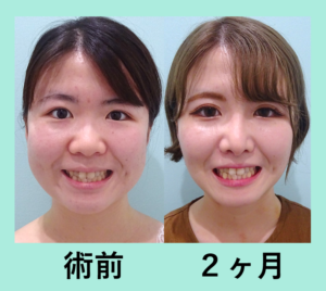 『がらりと印象が変わる「小顔組み合わせ治療」』の画像