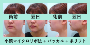 『翌日から即効でシャープに!「小顔組み合わせ治療」』の画像