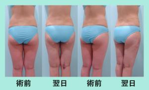 『がっつり吸引しても翌日の内出血最小限!「太もも・腰の脂肪吸引」』の画像