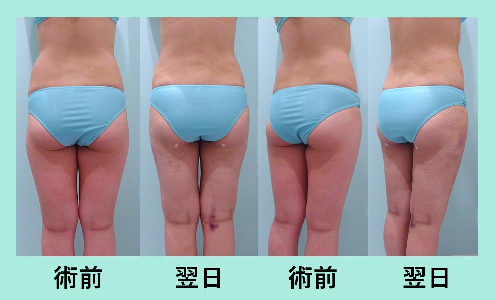 太もも 腰 ベイザー脂肪吸引 ダウンタイム