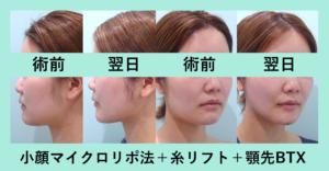 『面長が改善される!?「小顔組み合わせ治療」』の画像