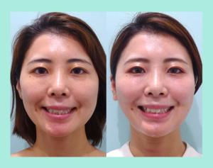 『左右差改善、お洒落な「小顔組み合わせ治療」』の画像