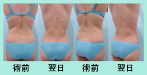 『当院ならではのハイレベルな脂肪吸引「二の腕肩付け根+背中+腰の脂肪吸引」』の画像