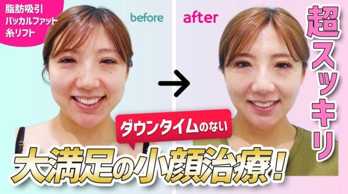 頬と顎下_バッカルファット除去_糸リフト