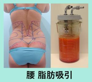 『衝撃的な変化!!「腰の脂肪吸引」』の画像