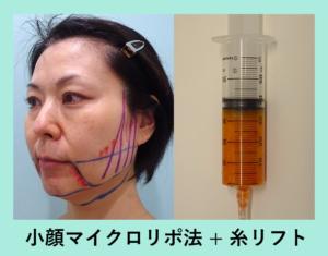 『顎下激変!!4-50代の方にも効果的です「小顔組み合わせ治療」』の画像