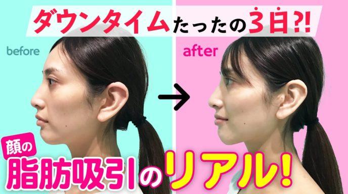 頬と顎下の脂肪吸引_マイクロリポ法