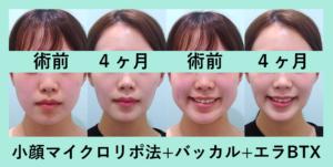 『超すっきりシャープに!!「小顔組み合わせ治療」』の画像