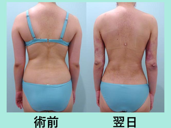 二の腕 背中 腰 ベイザー 脂肪吸引 ダウンタイム