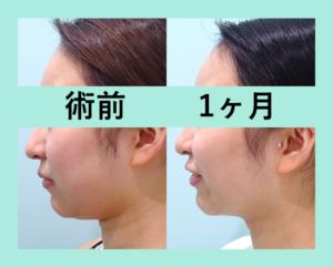 『丸顔から卒業!「小顔組み合わせ治療」』の画像