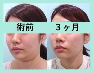 『超変化!!ダイエットも頑張りました!「小顔組み合わせ治療」』の画像