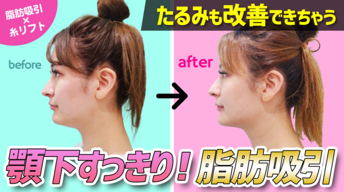 顎下すっきりたるみも改善できちゃう脂肪吸引