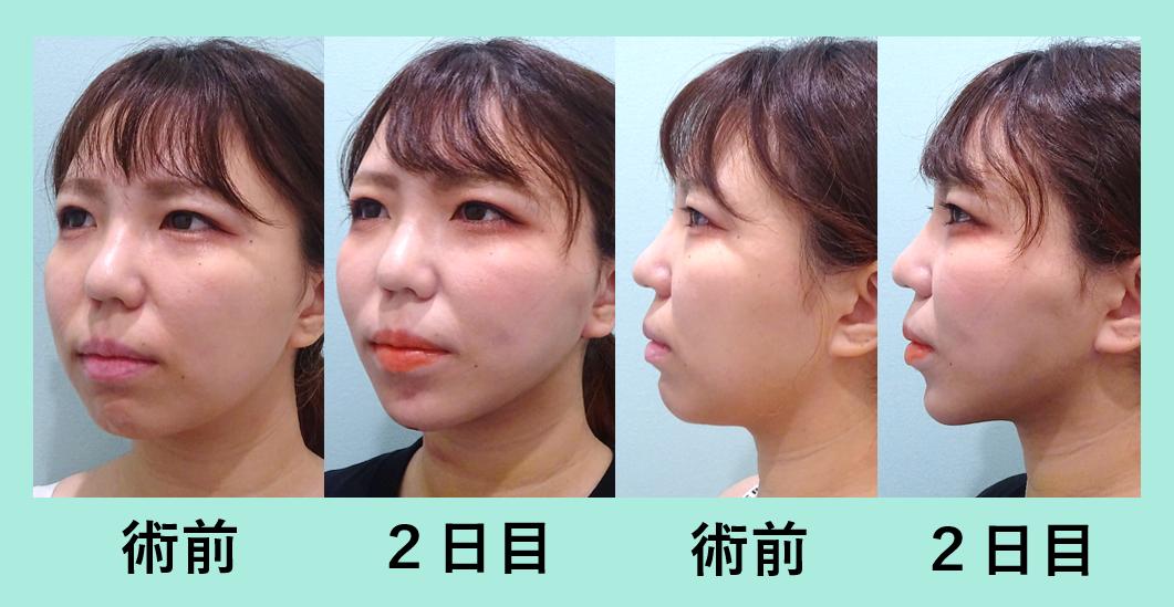 小顔 脂肪吸引 糸リフト 顎先ボトックス ダウンタイム