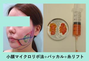 『もったりからスッキリへ「小顔組み合わせ治療」』の画像