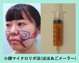 『ダイエットも成功!!頬+顎下+メーラー吸引「小顔マイクロリポ法」』の画像