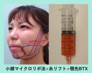 『横顔が激的変化!「小顔組み合わせ治療」』の画像