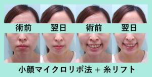 『最強の「小顔組み合わせ治療」』の画像