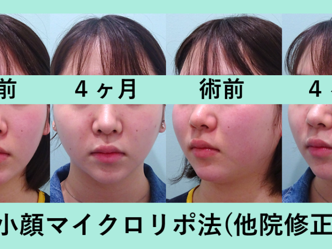小顔 脂肪吸引 他院修正 ビフォーアフター