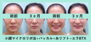 『笑顔別人!頬こけしてもきちんと責任もって対応します「小顔組み合わせ治療」』の画像