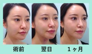 『顎下超絶スッキリ!「小顔組み合わせ治療」』の画像