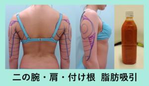 『あえて表面の脂肪を少しだけ残す、絶妙な加減がポイント「二の腕・肩・付け根の脂肪吸引」』の画像