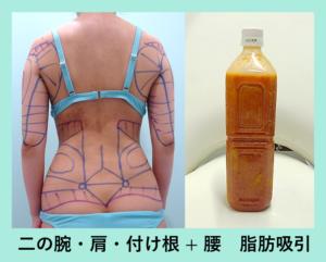 『おすすめの組み合わせ!「二の腕肩付け根 + 腰の脂肪吸引」』の画像