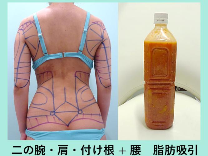 二の腕 腰 ウエスト 脂肪吸引 デザイン