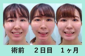 『最初はシュッと、それからしばらく浮腫みます「小顔組み合わせ治療」』の画像