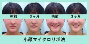 『顔がひとまわりスッキリ!「小顔マイクロリポ法」』の画像