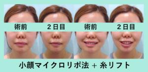 『もたつきがバッチリ改善!「小顔組み合わせ治療」』の画像