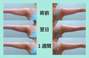 『内出血なし!?「二の腕・肩・付け根の脂肪吸引」』の画像