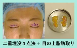 『腫れぼったいまぶたには「二重組み合わせ治療」』の画像