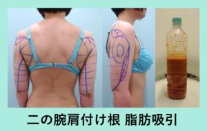 『別人級になりましたね!!「二の腕肩付け根の脂肪吸引」』の画像
