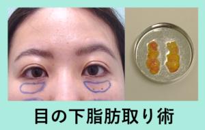 『目の下スッキリ、目が大きく見えます!「クマ治療」』の画像