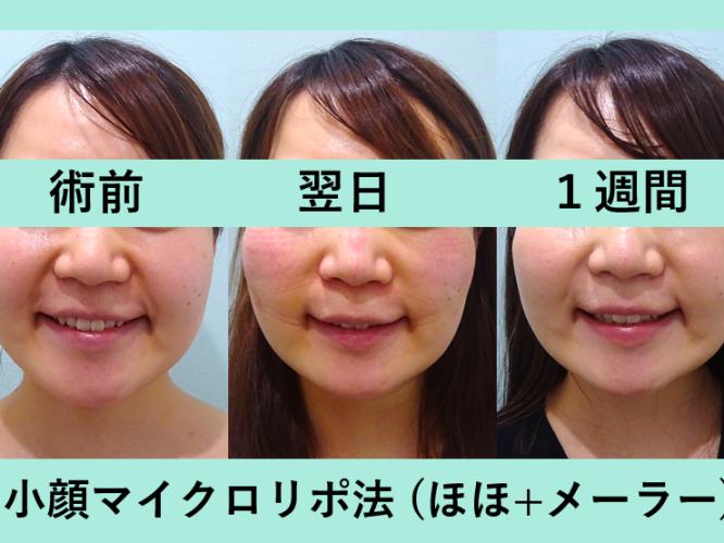 小顔 脂肪吸引 メーラーファット ダウンタイム